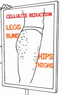 cellulite trouble-zones diagram