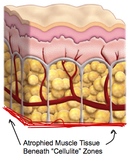 atrophied muscle tissue beneath cellulite zones