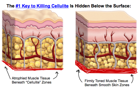 the number 1 key to killing cellulite is hidden below the surface