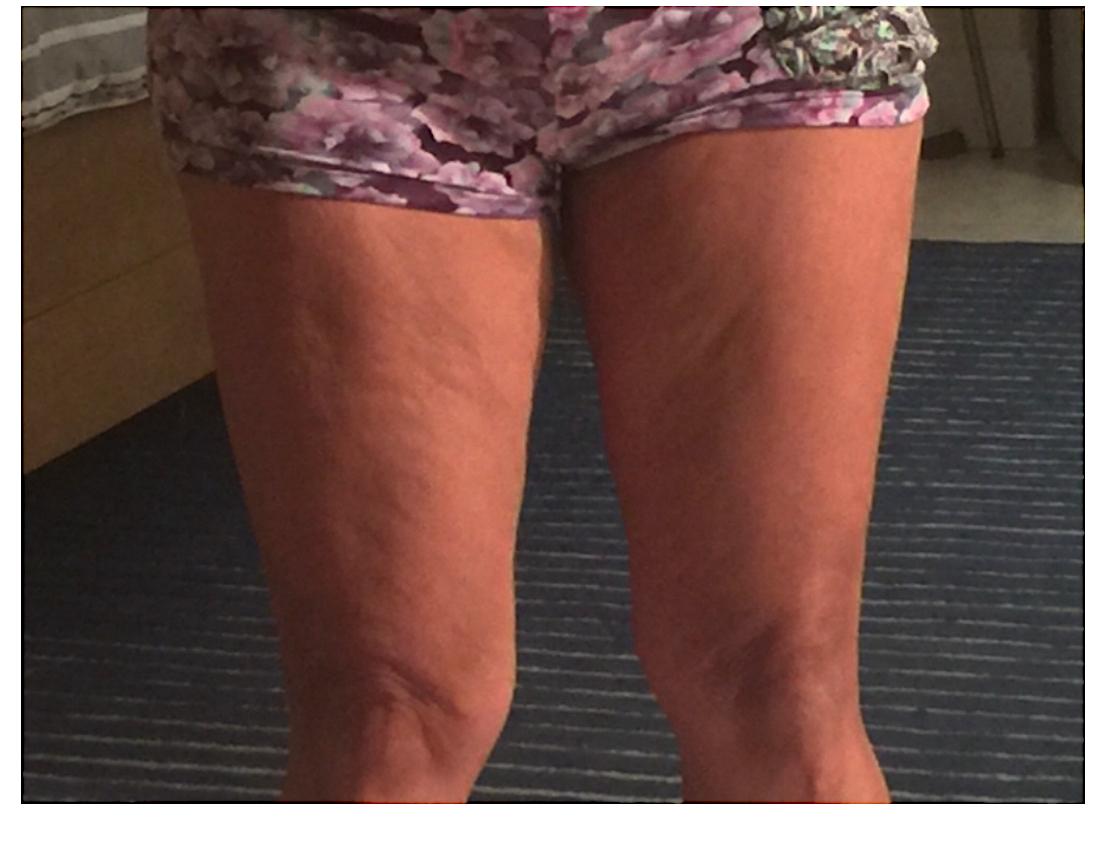 Gloria's Cellulite Before Photo of Cellulite On Front of Thighs and Legs