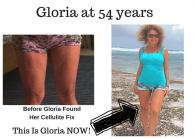Another Incredible Cellulite Success Story with Cellulite Before and After Photos