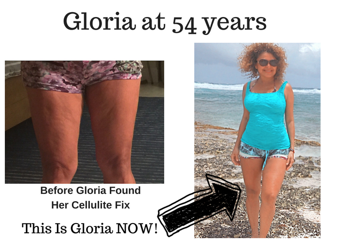 cellulite success story Gloria at 54 years cellulite before and after photos